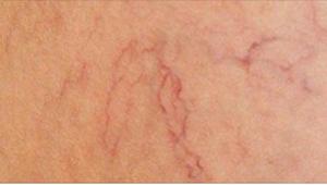 Monilla on kotitekoisia parannuskeinoja katkenneisiin verisuoniin, mutta kukaan