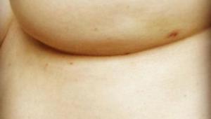 Viaton kuva rinnasta paljastaa vähemmän tunnetun syövän oireen. Huomaatko sen?
