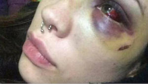 23-vuotias nainen julkaisi tunteita herättävän kuvan Facebookissa. Kukaan ei voi