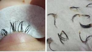 Säikähtänyt kosmetologi varoittaa kaikkia naisia tästä katastrofaalisesta virhee