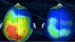 Neurologit tekivät kappaleen, joka vähentää ahdistusta. Oletko jo kuullut sen?