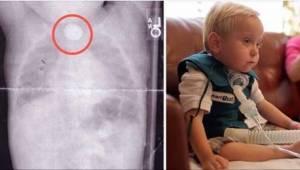 Kun heidän poikansa alkoi oksentaa verta, he eivät arvanneet sen tapahtuneen vaa