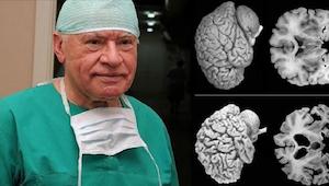 Neurokirurgit huomauttavat. Jokaisen naisen pitäisi tietää nämä faktat!