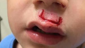 Suosittu lelu vahingoitti pojan kasvoja - nyt isä varoittaa muita vanhempia!