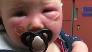 Huomio! Äiti varoittaa muita vanhempia aurinkorasvasta – se aiheutti hänen lapse