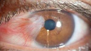 Lähes kaikki tekevät sitä - tuhannet ihmiset pilaavat silmänsä vahingossa.