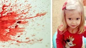 Kaksivuotias meni nukkumaan ja alkoi oksentaa verta. Pian sen jälkeen hän meneht