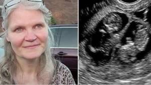 41-vuotias odotti kolmosia, mutta kun synnytyksen aikana lääkäri sai selville uu