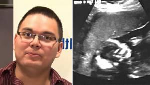 Mies melkein pyörtyi nähtyään ultraäänikuvan. Sairaanhoitaja kertoi todennäköisy